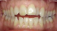 จัดฟัน ฟันสบเปิด