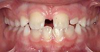 จัดฟัน-ฟันห่าง2